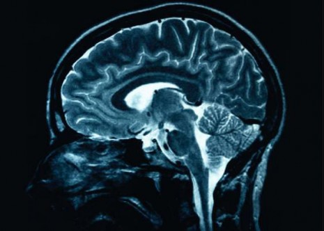 Looch Image of Brain
